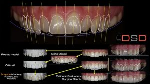 computer generated changes to teeth for a better smile